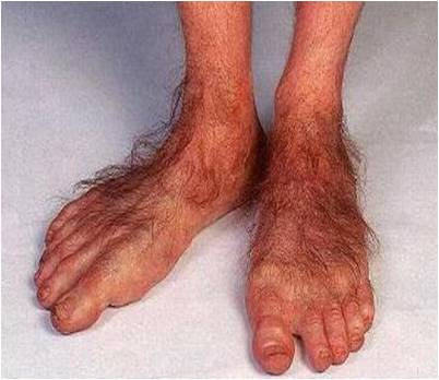 Hobbit feet: not a good look